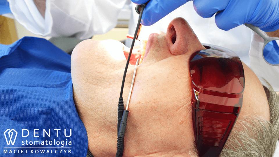 leczenie kanałowe zęba, stomatolog tczew, leczenie zęba pod mikroskopem, endometr