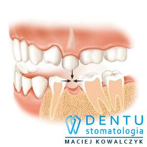 implanty Tczew - brak zęba