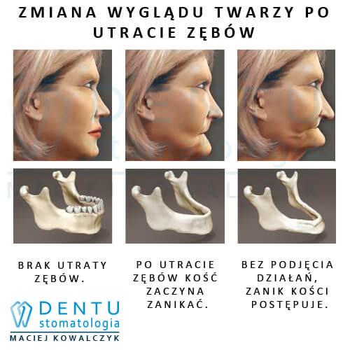 Protetyka Tczew - stomatolog Tczew.