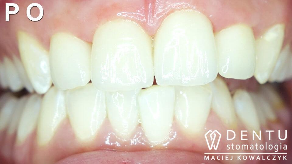 Korony zębowe Tczew - leczenie protetyczne.