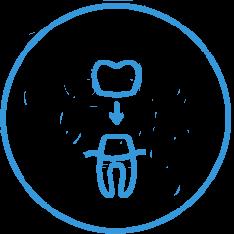 implanty tczew - korony zębowe