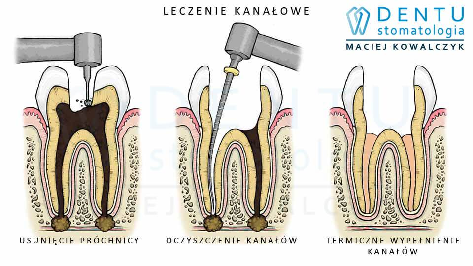 Leczenie mikroskopowe - gabinet stomatologiczny Tczew.