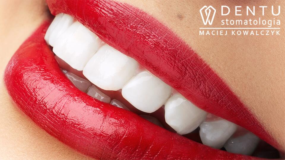 Wybielanie zebów Tczew - metoda wybielania zębów DENTU white to usługa z zakresu stomatologii estetycznej.
