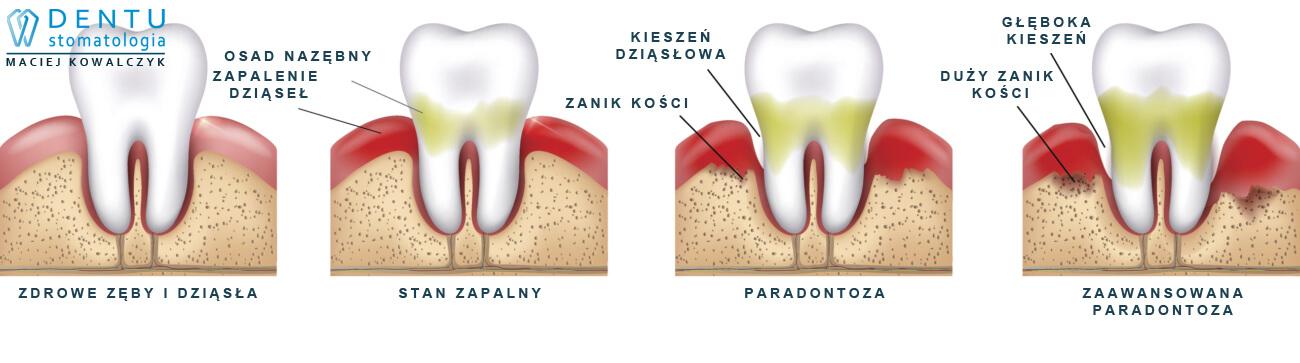 Periodontolog Tczew - leczenie paradontozy - jak powstaje paradontoza