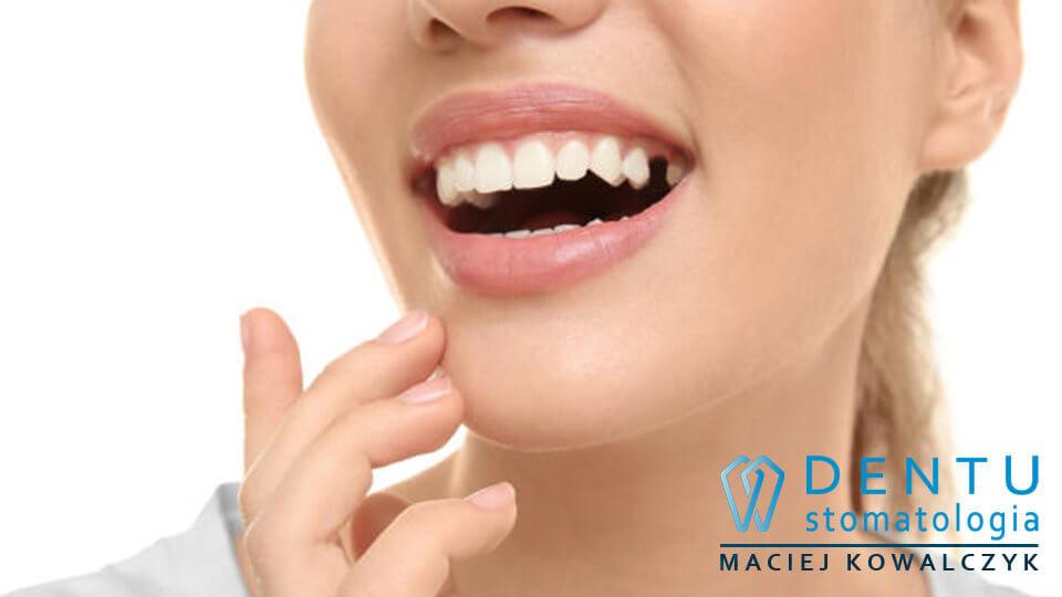brak zęba leczenie, implantolog tczew, implanty zębów tczew,