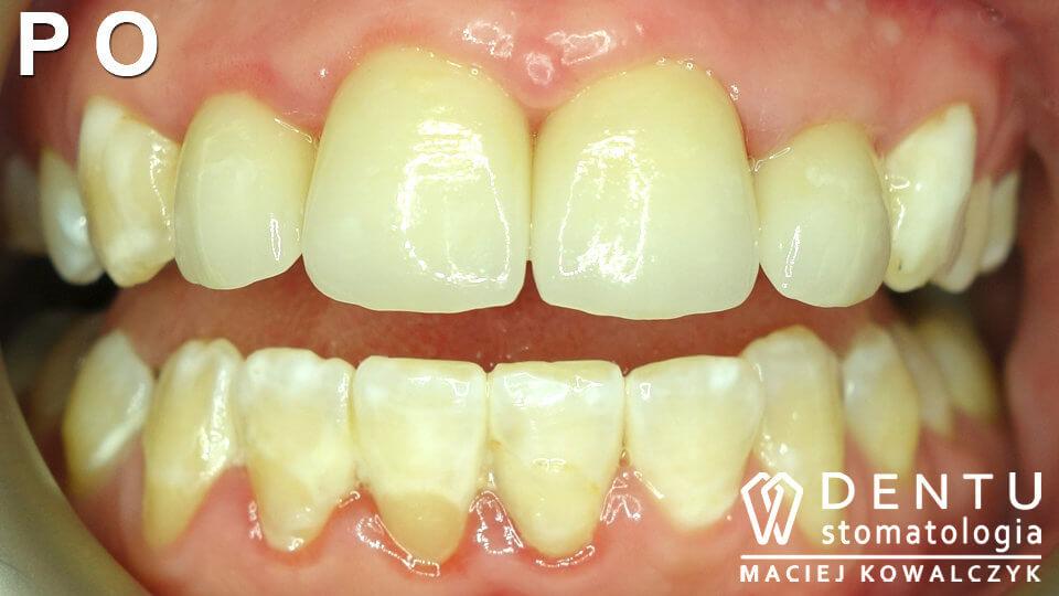 tczew dentysta