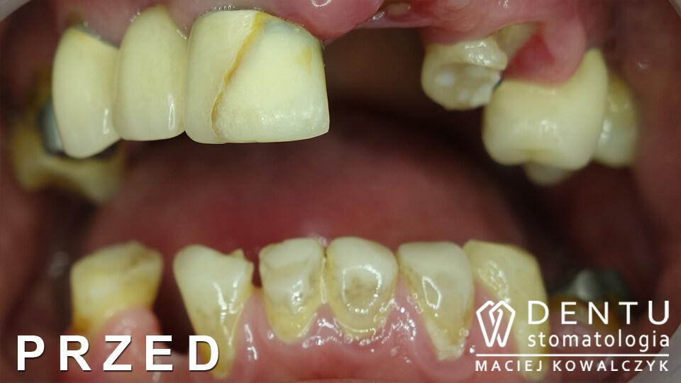 przed i po zęby, metamorfoza uśmiechu