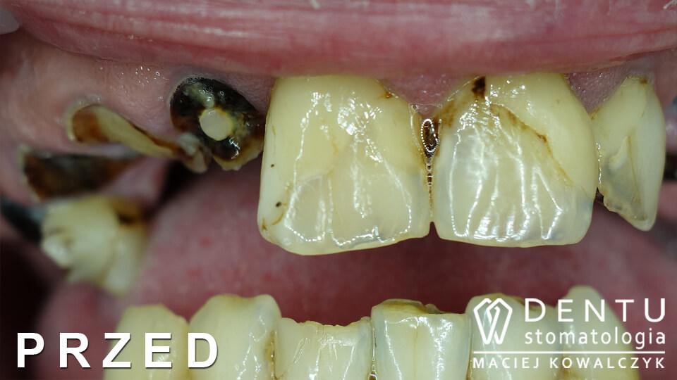 przed i po zęby, przed i po zeby