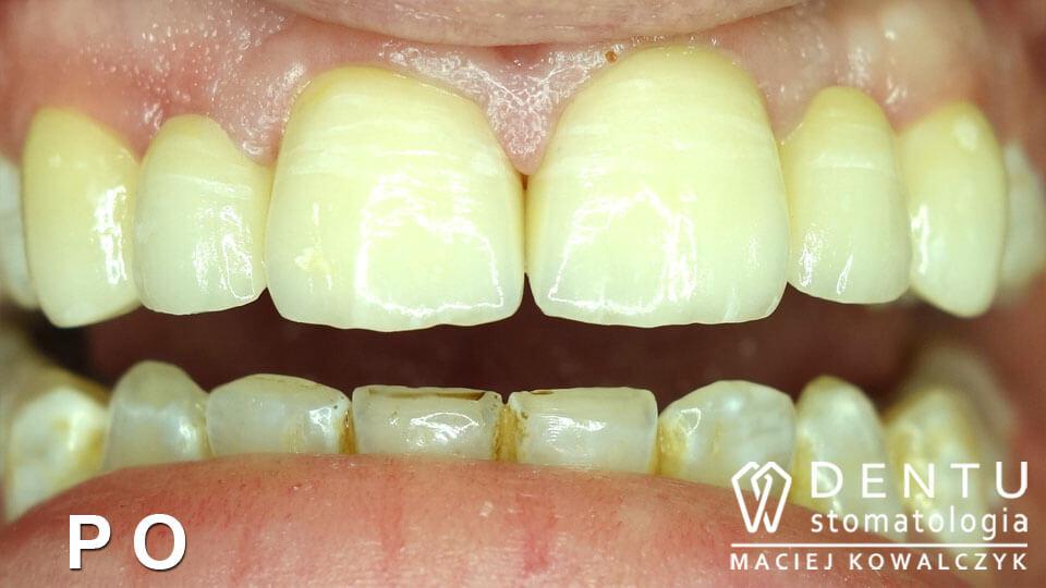leczenie fluorozy, dentu tczew, usmiech przed i po