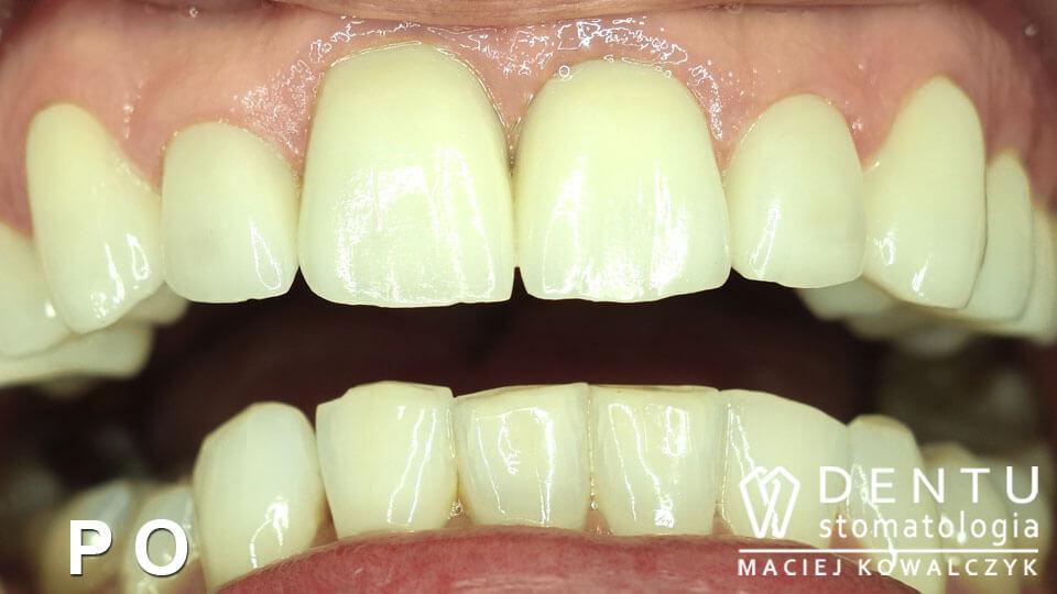 tczew stomatolog, tczew stomatologia, dentu