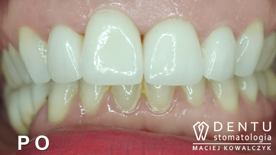 tczew dentysta, przed i po, metamorfoza uśmiechu,