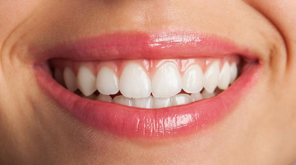 estetyczne wypełnienia zębów - dentu plus - wypełnienia kompozytowe białe
